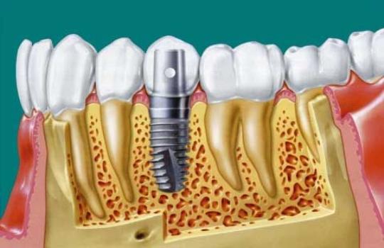 мужчины смешные фото имплатанцыя зубов это